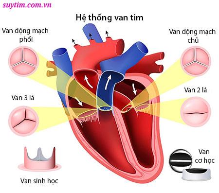 Hở van tim ¼ có sao không tùy theo loại van và mức độ triệu chứng
