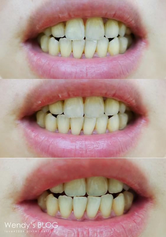 定白特牙齒淨白專家