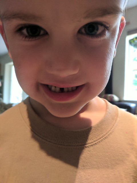 First Missing Tooth!