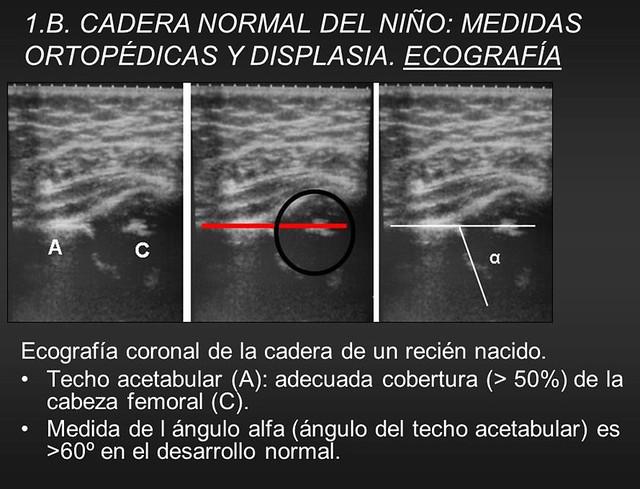 DDC - eco de cadera normal