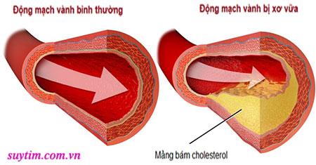 Sự tích tụ của các phần tử cholesterol gây xơ vữa động mạch vành, dẫn tới thiếu máu cơ tim cục bộ
