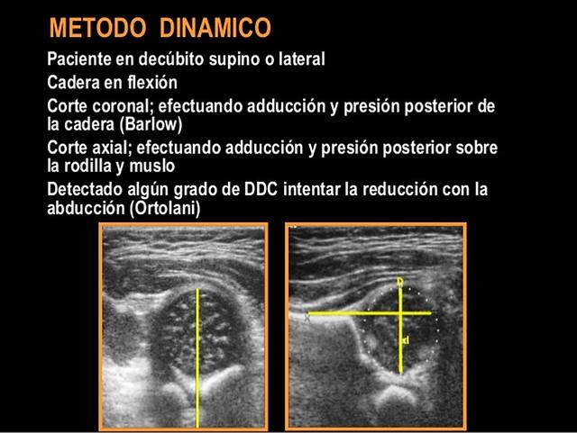 DDC - Método de Harcke