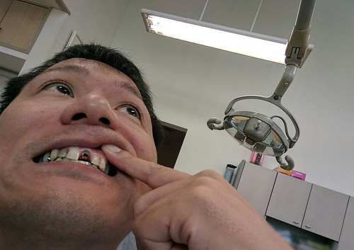 差し歯の前歯が取れた
