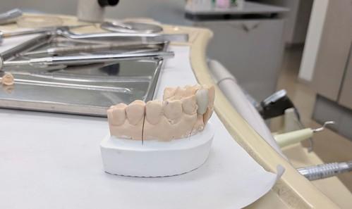 新しい前歯の差し歯、これに交換する