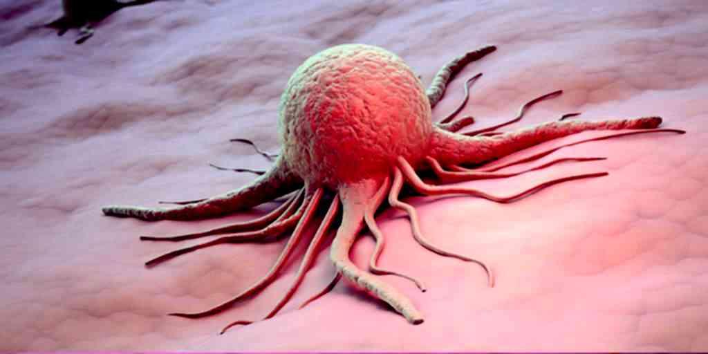 L'IA peut limiter la toxicité du traitement du cancer