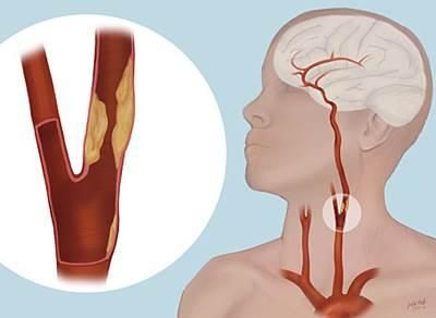 Bahaya Penyempitan Pembuluh Darah Di Kepala
