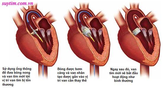 Kỹ thuật thay van động mạch chủ bằng đường ống thông