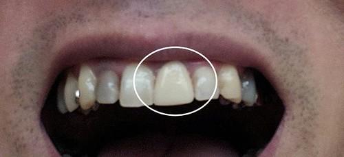 仮歯の前歯