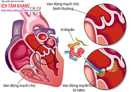 Người bệnh hở van tim 1/4 cần phòng tránh viêm nội tâm mạc.