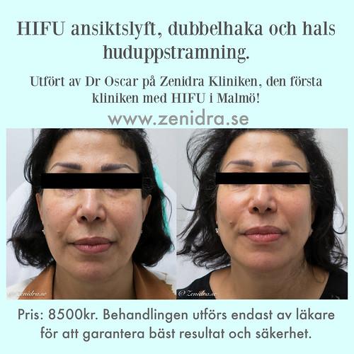HIFU ansiktslyft huduppstramning