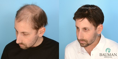 30187534868 446eac69b6 VIDEO: Brain Cancer Patient Tim Receives CNC Cranial Prosthesis Hair Replacement