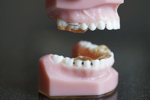 牙齒矯正是矯正還是矯歪?為什麼做牙齒矯正牙齒沒變整齊,臉還變醜了!? (6)