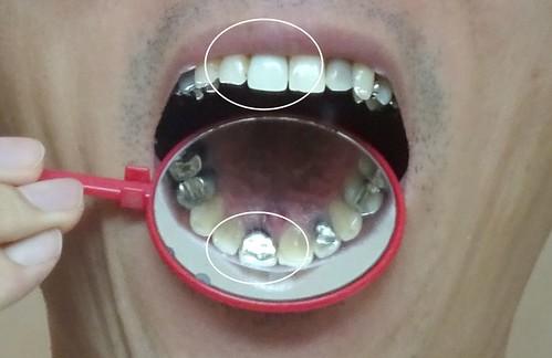 差し歯の裏側