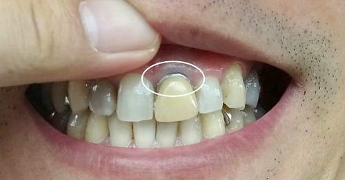 以前の前歯の差し歯を仮の歯として入れた、セメント見える