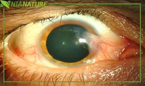 Daun Sirih Untuk Pengobatan Mata Berlemak