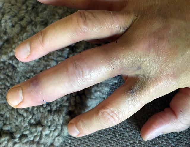 bruising-25sep