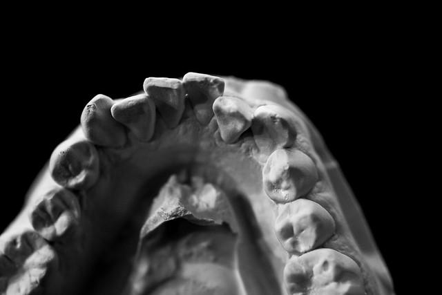 Dental Mold-10