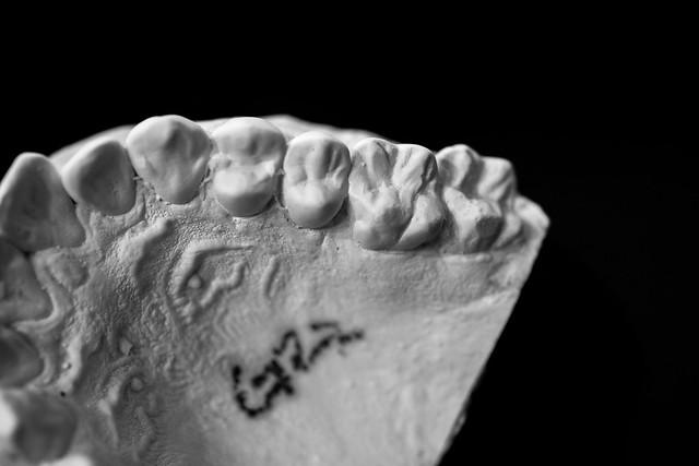 Dental Mold-6