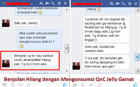 Testimoni QnC Jelly Gamat Sembuhkan Penyakit Tiroid