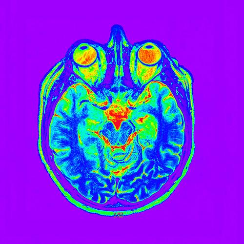 TEP de cráneo - Copyright Luis Monje