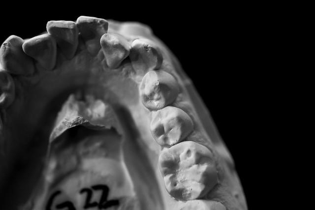 Dental Mold-9