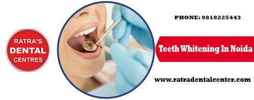 Teeth Whitening in Noida