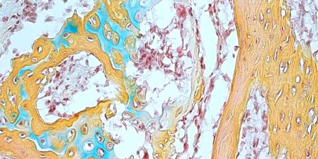 cellules-souches-squelettiques