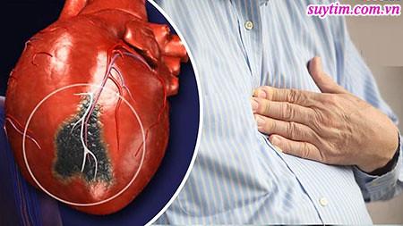 Thiếu máu tim thầm lặng gây nhồi máu cơ tim không cảnh báo bằng cơn đau thắt ngực