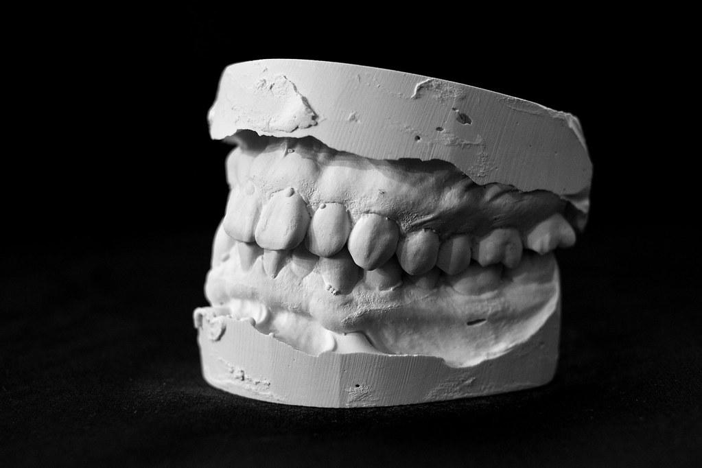 Dental Mold-2 | 2litresofsoysauce | Flickr
