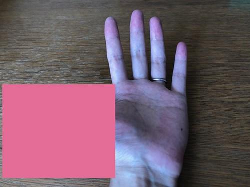 手のひら。親指が見えない(左下4分の1の視野欠損)