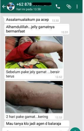 Testimoni QnC Jelly Gamat Sebagai Obat Eksim Kering Menahun