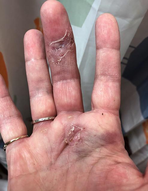 bruising-7okt
