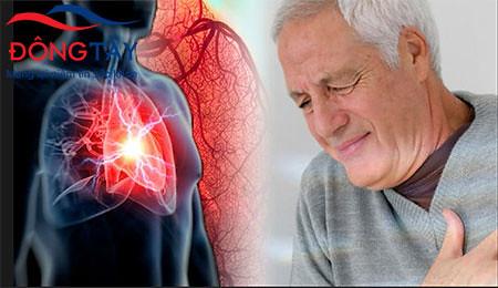 Chứng rối loạn nhịp tim có thể gây nhiều biến chứng nguy hiểm