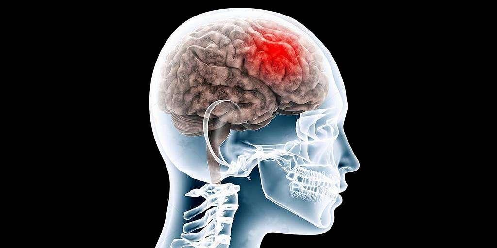 La RV et le scanneur pour diagnostiquer les commotions cérébrales
