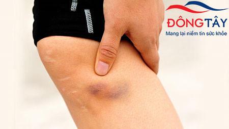Các vết bầm tím dưới da có thể là dấu hiệu của tình trạng xuất huyết sau đặt stent