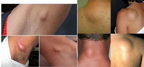 Efek Samping Operasi Lipoma