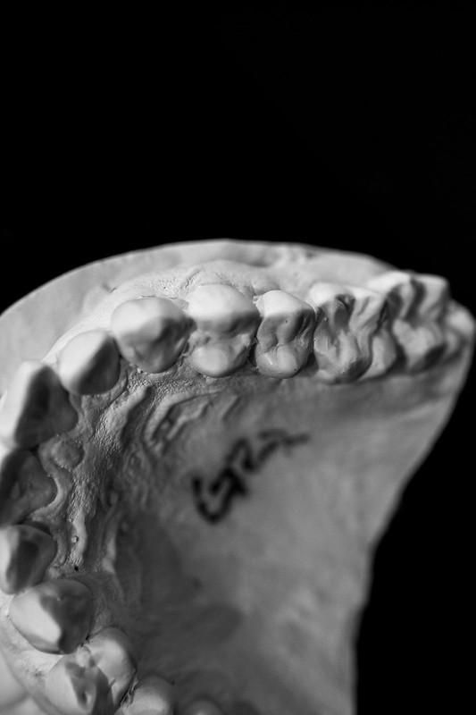 Dental Mold-5