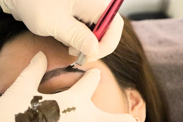 LA VIDA: Making small incisions with a micro-blade