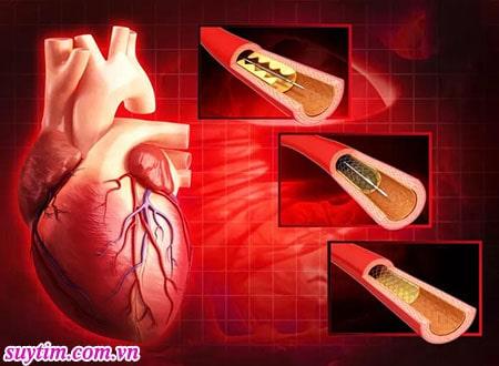 Stent giúp mở rộng lòng động mạch vành, giúp máu lưu thông