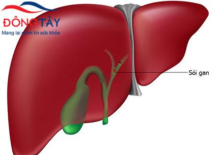 Sỏi gan có thể gây nên nhiều biến chứng nguy hiểm