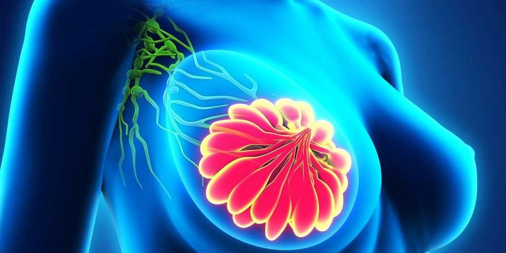 Traiter le cancer du sein autrement