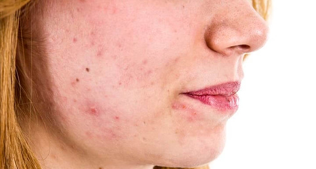4638 6 reasons you should not pop pimples on your face 02