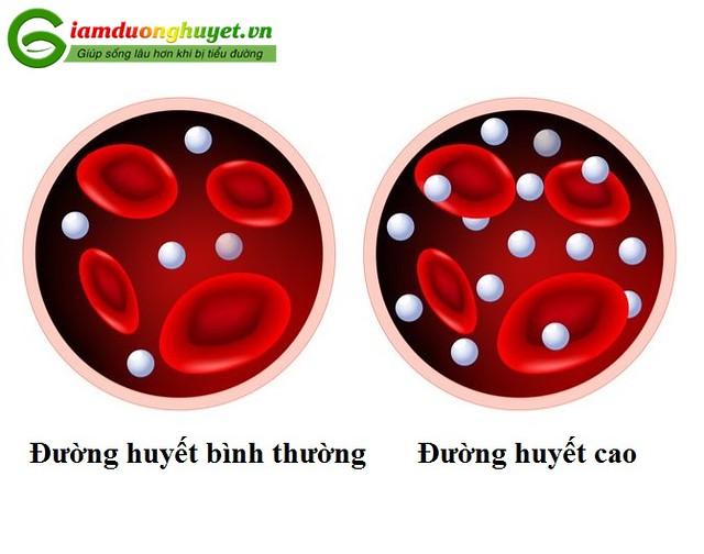 Tăng đường huyết lâu dài và cấp tính sẽ dẫn tới các triệu chứng không giống nhau