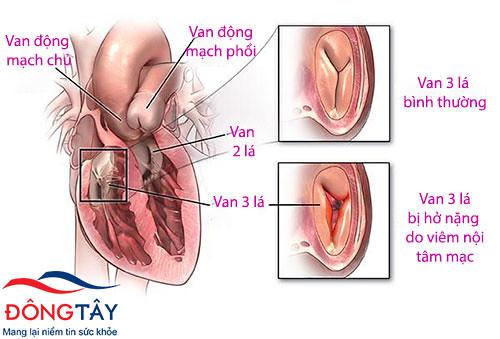 Hở van tim 3 lá 2/4 - 3 biến chứng nguy hiểm người bệnh cần tránh!