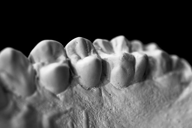 Dental Mold-8
