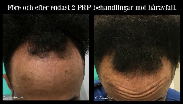 PRP håravfall Malmö