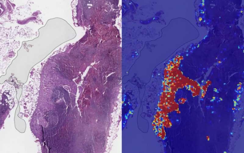 cancer-sein-image
