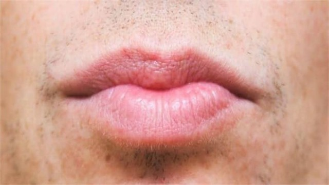2668 13 Useful Tips to have Attractive Pink Lips 02