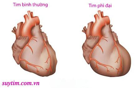Trái tim bị phì đại, to hơn bình thường