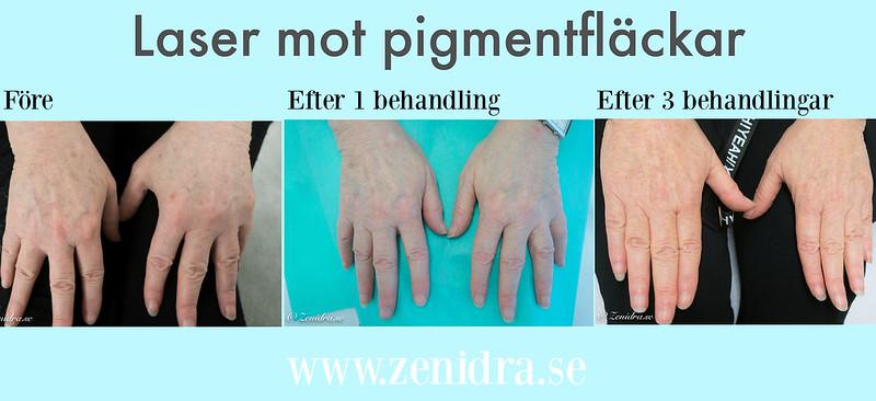 Laser pigment händer Malmö